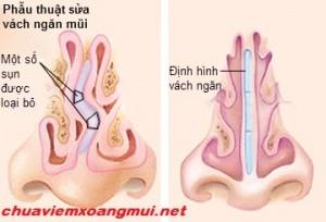 Cách điều trị viêm xoang lệch vách ngăn hiệu quả -1