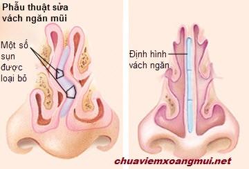 cac-phuong-phap-phau-thuat-viem-mui-di-ung (2)