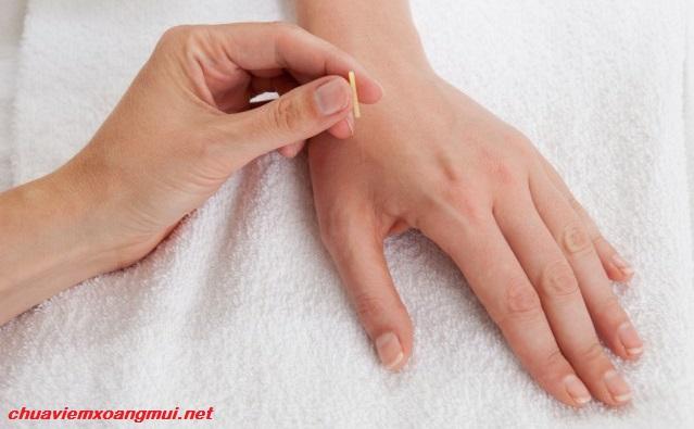 Châm cứu huyệt hợp cốc chữa viêm mũi dị ứng