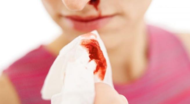 Bạn đã biết về nguyên nhân gây hỉ mũi ra máu tươi?