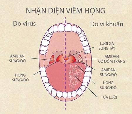 em-bi-viem-hong-keo-dai-phai-lam-sao