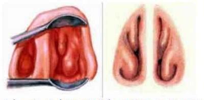 Thực hư cắt bỏ cuốn mũi gây vô sinh