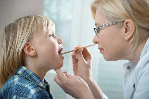 Viêm họng hạt ở trẻ có chữa được không 3