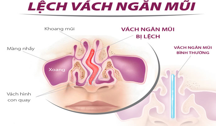 nhung-thong-tin-ve-chung-viem-xoang-lech-vach-ngan1