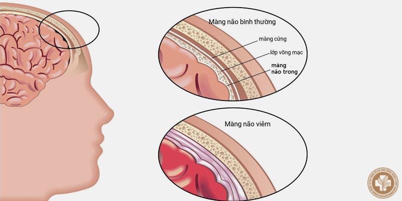 Viêm xoang gây ra biến chứng viêm màng não