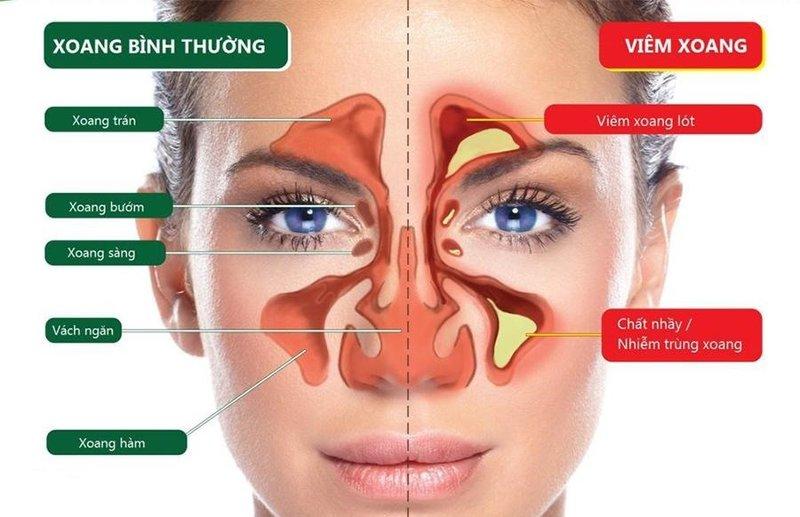 Viêm xoang là tình trạng bệnh đường hô hấp thường gặp