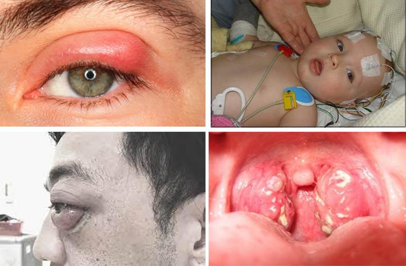 Một số biến chứng viêm xoang mũi nguy hiểm có thể gặp