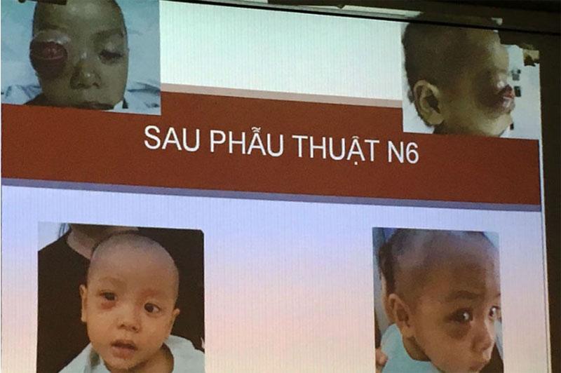 Hình ảnh em bé gặp biến chứng viêm xoang mũi trước và sau phẫu thuật