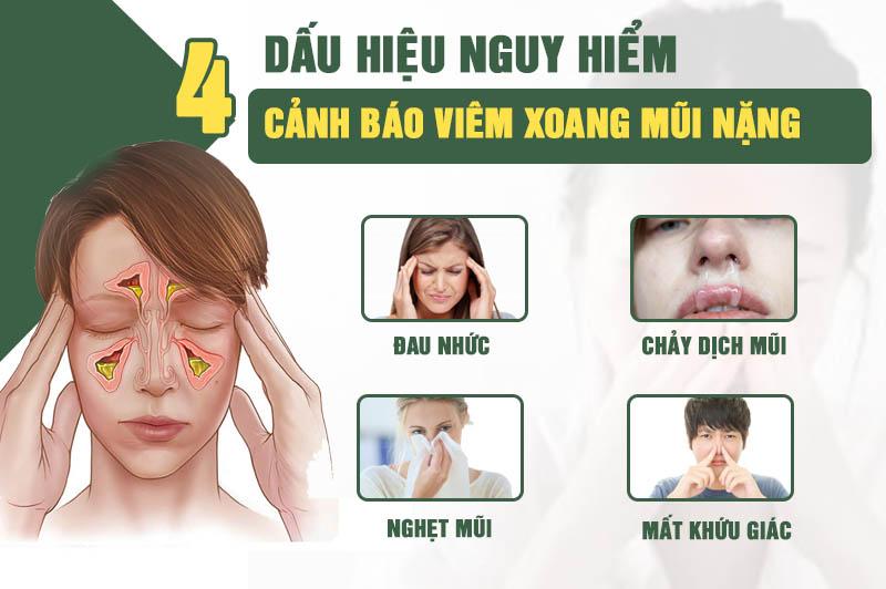 Dấu hiệu cảnh báo viêm xoang mũi nặng